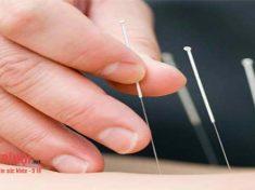 Phương pháp chữa bệnh trĩ bằng châm cứu.