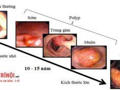Phân biệt bệnh trĩ với ung thư trực tràng