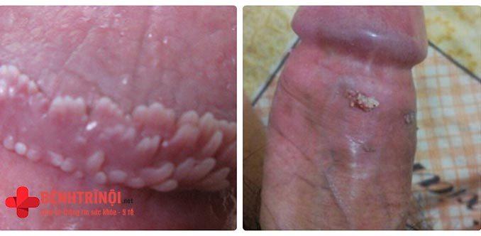 Biểu hiện của bệnh sùi mào gà ở nam giới