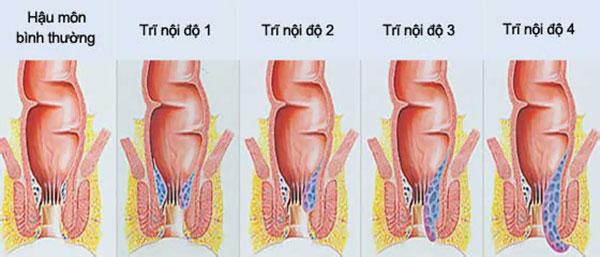 cách phòng bệnh trĩ nội
