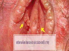Viêm âm đạo do nấm cách xử lý