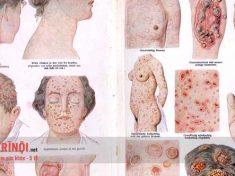 biểu hiện bệnh giang mai