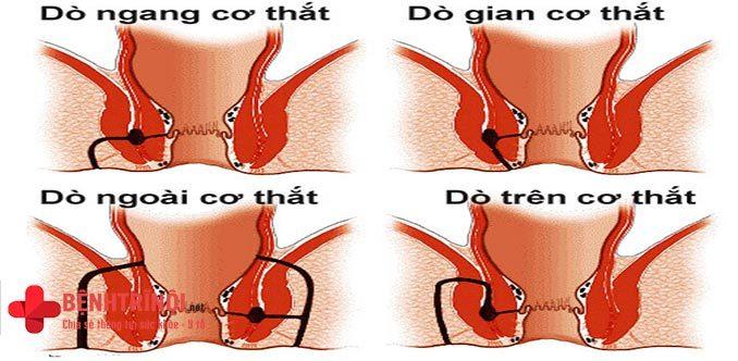 Bệnh rò hậu môn xuyên cơ thắt là gì?